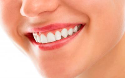Faccette estetiche e Digital Smile Design